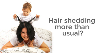 Women with hair loss post pregnancy and postpartum
