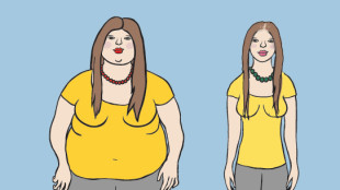 Hair Loss after gastric bypass surgery