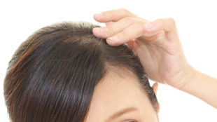 does evolis prevent hair loss