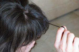 trichotillomania hair pulling